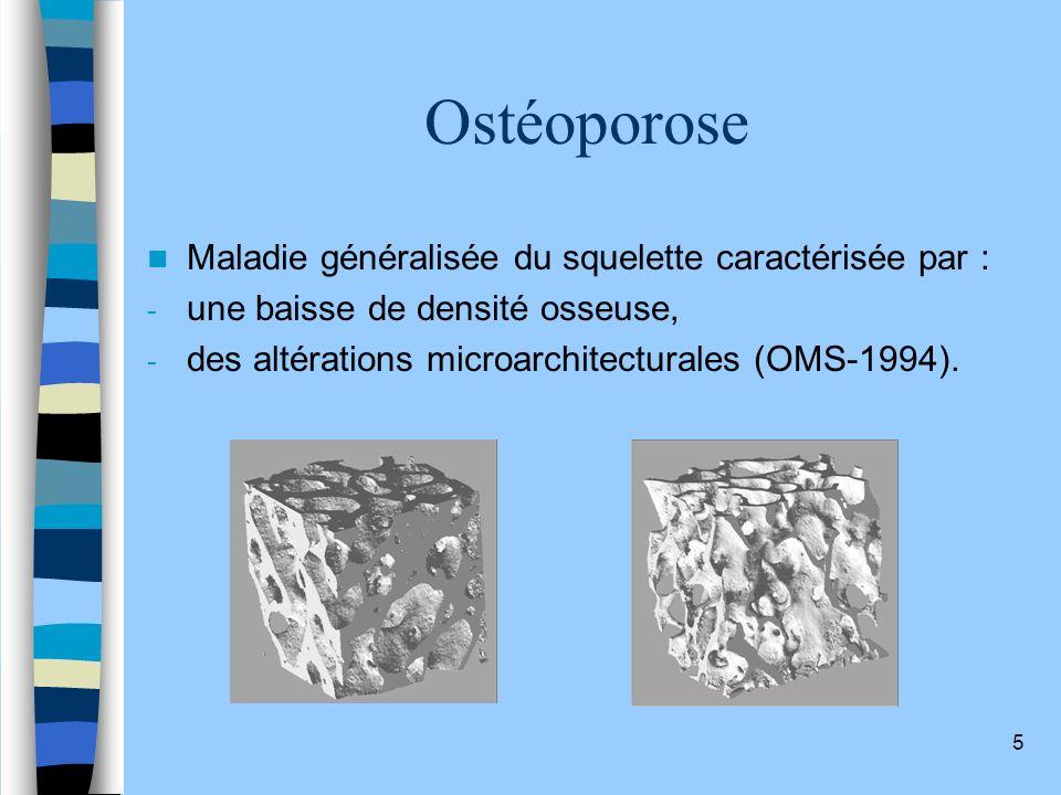 Ostéoporose Maladie généralisée du squelette caractérisée par :