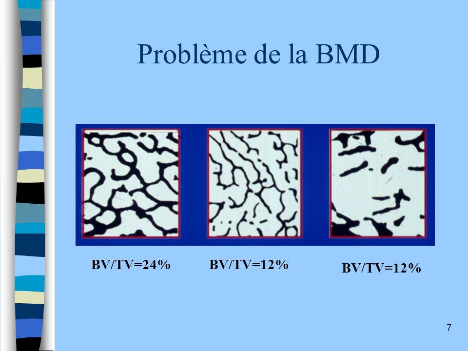 Problème de la BMD BV/TV=24% BV/TV=12% BV/TV=12%