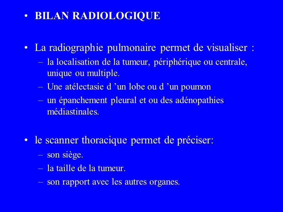 La radiographie pulmonaire permet de visualiser :