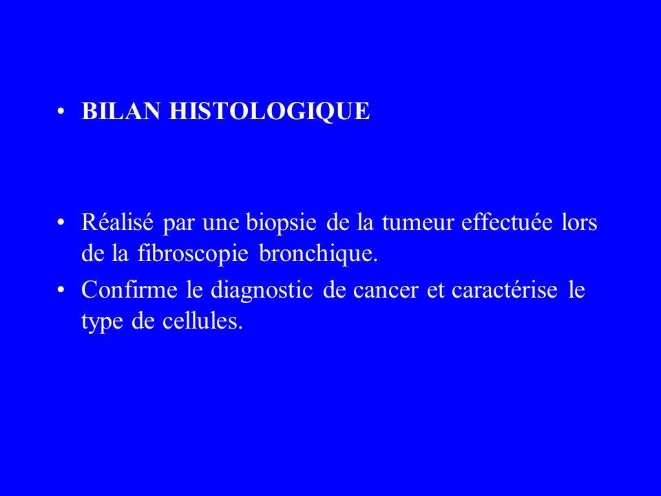 BILAN HISTOLOGIQUE Réalisé par une biopsie de la tumeur effectuée lors de la fibroscopie bronchique.