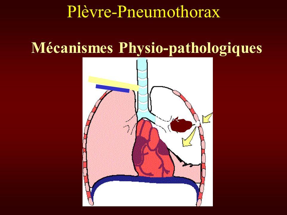 Mécanismes Physio-pathologiques