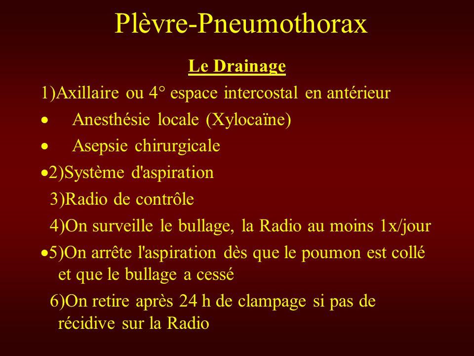 Plèvre-Pneumothorax Le Drainage