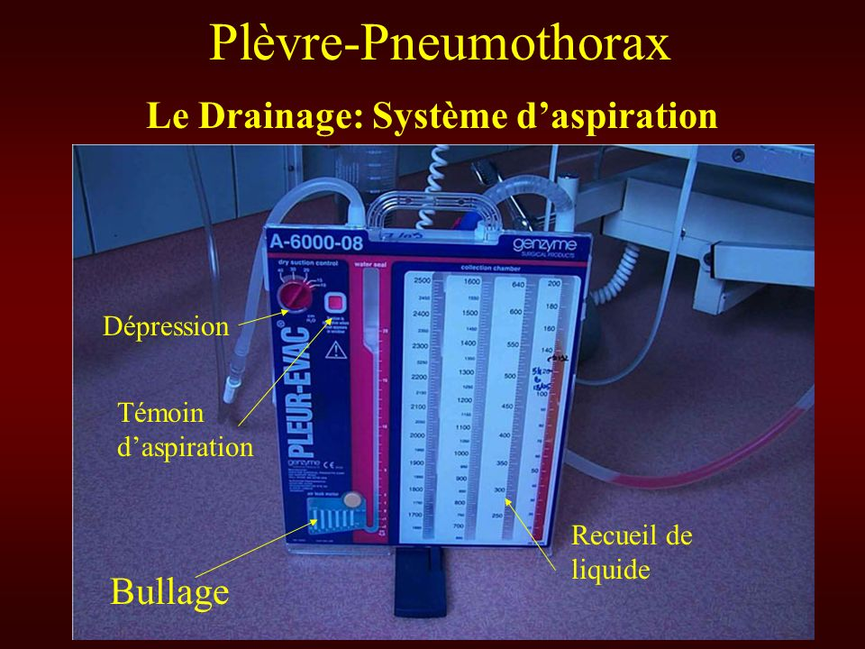 Pathologies Pleurales Ppt Video Online T 233 L 233 Charger