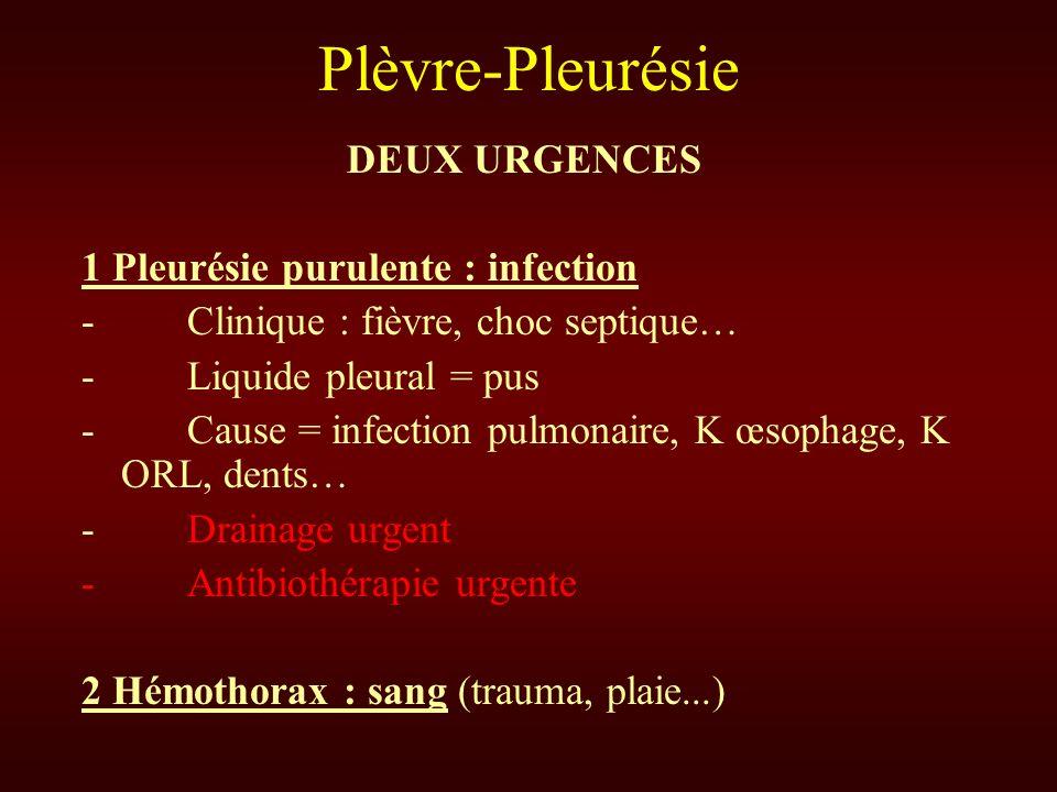 Plèvre-Pleurésie DEUX URGENCES 1 Pleurésie purulente : infection