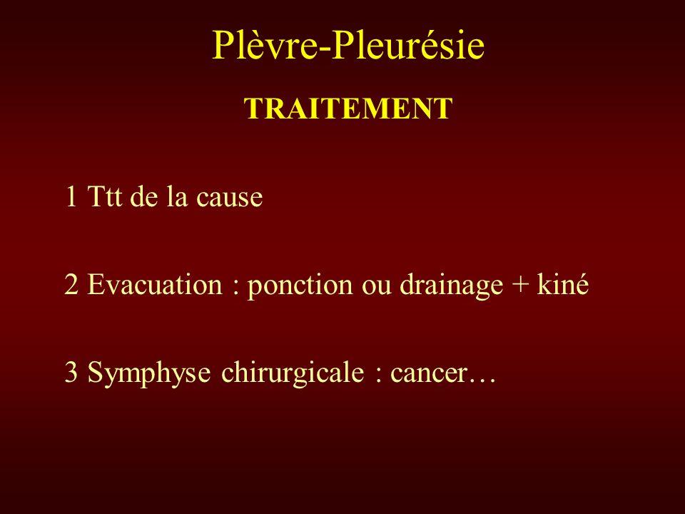 Plèvre-Pleurésie TRAITEMENT 1 Ttt de la cause