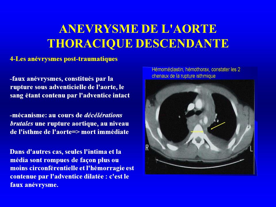 ANEVRYSME DE L AORTE THORACIQUE DESCENDANTE