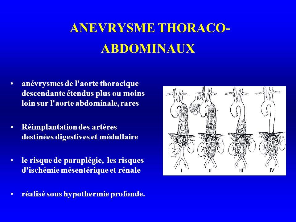 ANEVRYSME THORACO-ABDOMINAUX