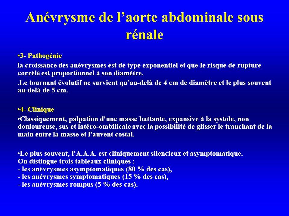 Anévrysme de l'aorte abdominale sous rénale