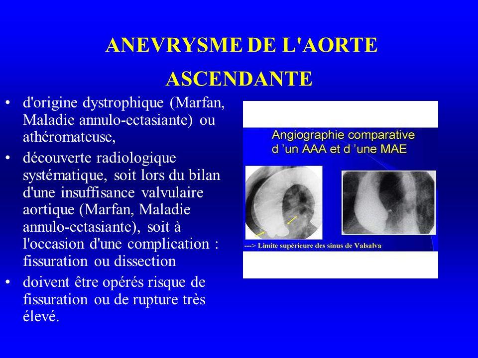 ANEVRYSME DE L AORTE ASCENDANTE