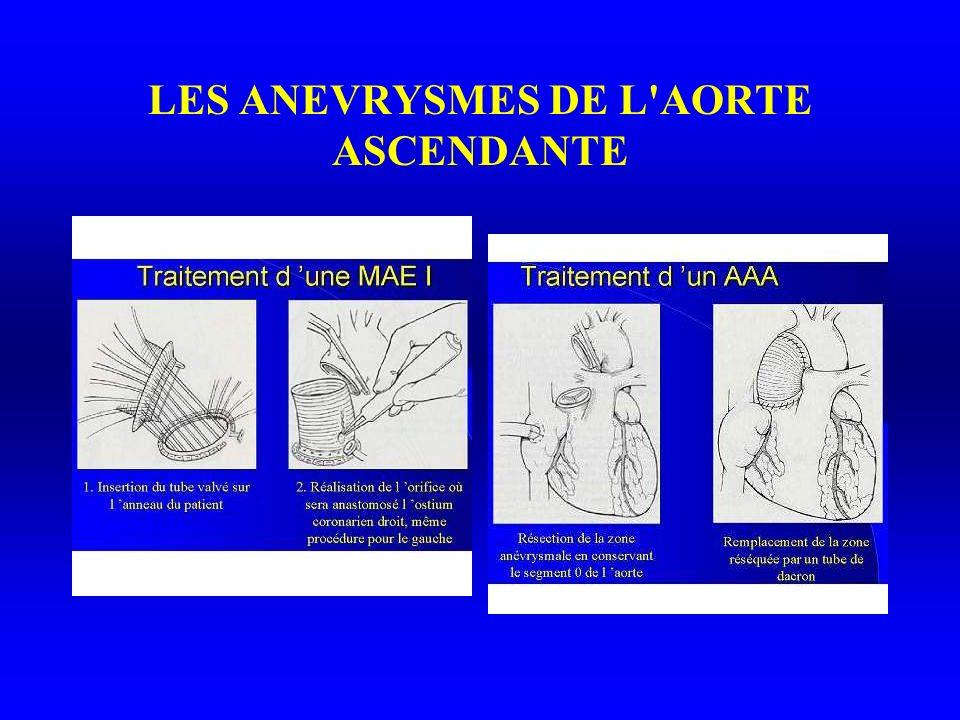 LES ANEVRYSMES DE L AORTE ASCENDANTE