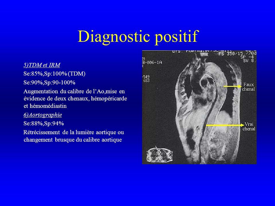 Diagnostic positif 5)TDM et IRM Se:85%,Sp:100% (TDM) Se:90%,Sp:90-100%