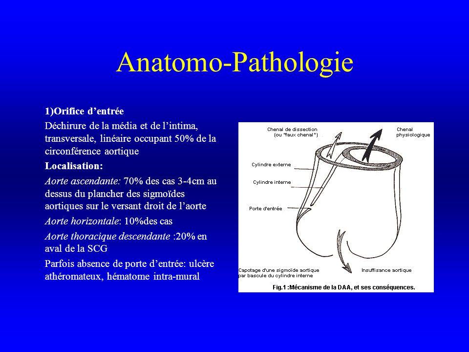 Anatomo-Pathologie 1)Orifice d'entrée