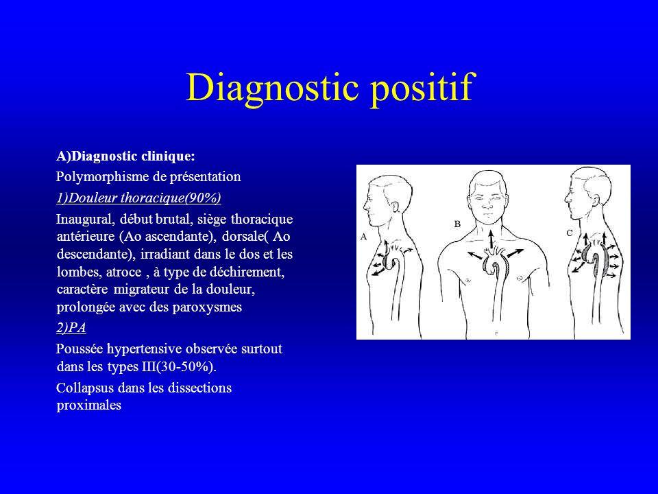 Diagnostic positif A)Diagnostic clinique: