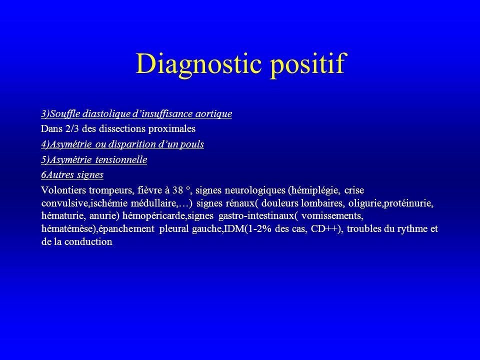 Diagnostic positif 3)Souffle diastolique d'insuffisance aortique