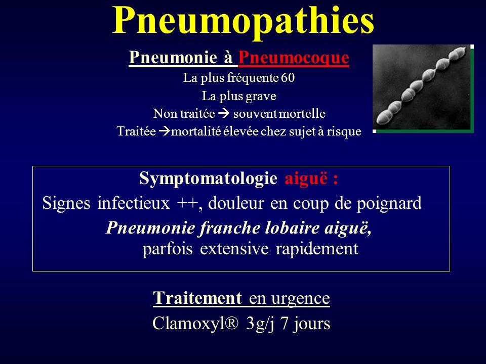 Pneumopathies Pneumonie à Pneumocoque Symptomatologie aiguë :