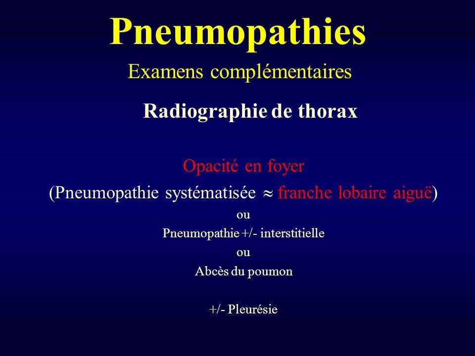 Pneumopathies Examens complémentaires Radiographie de thorax