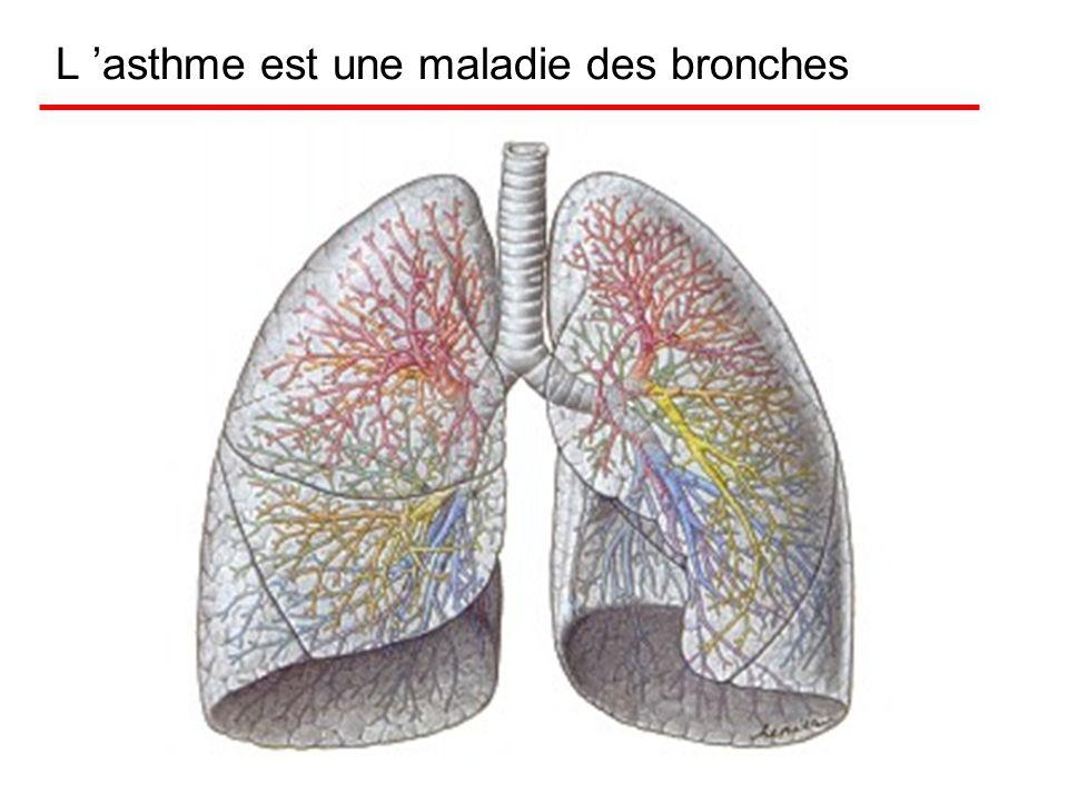 L 'asthme est une maladie des bronches