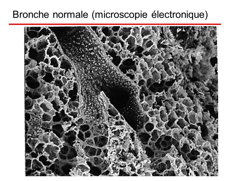 Bronche normale (microscopie électronique)