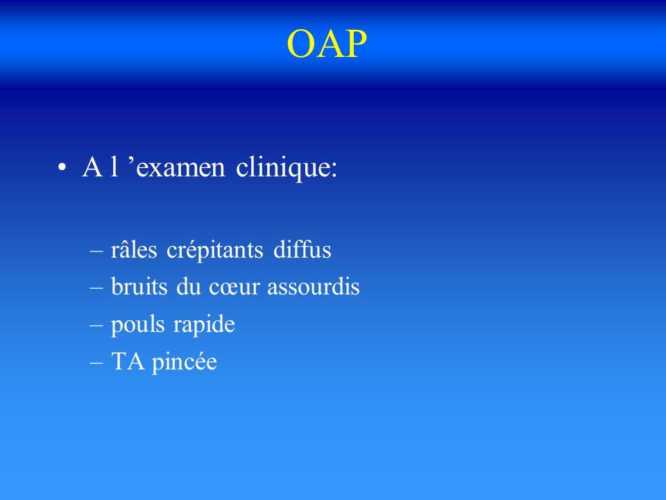 OAP A l 'examen clinique: râles crépitants diffus