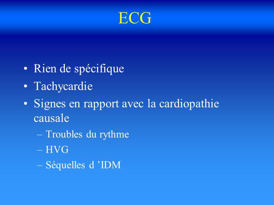 ECG Rien de spécifique Tachycardie