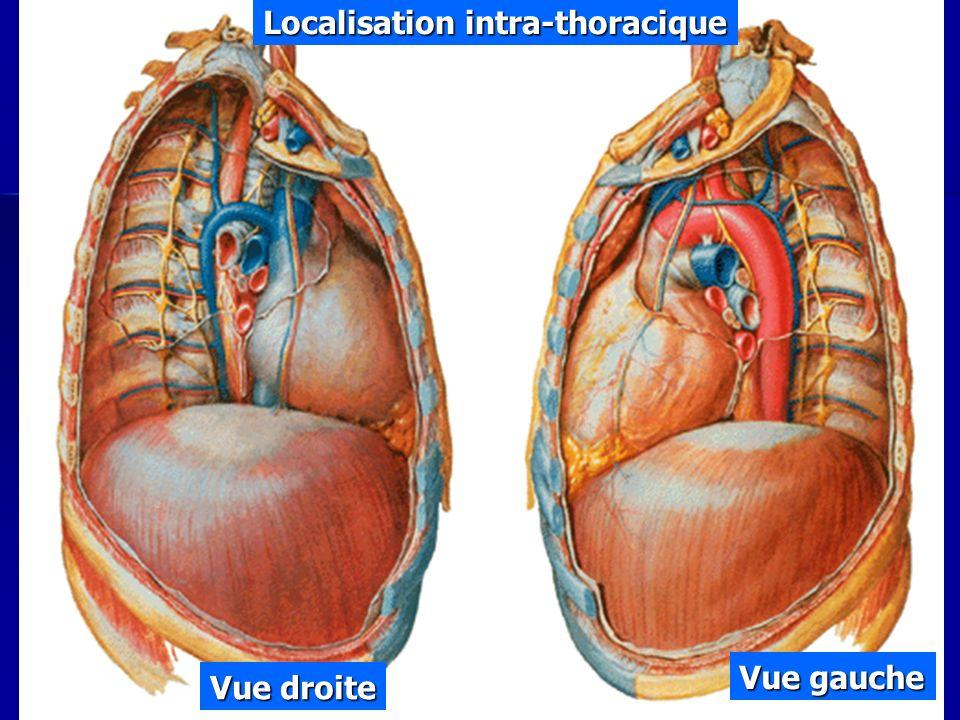 Localisation intra-thoracique