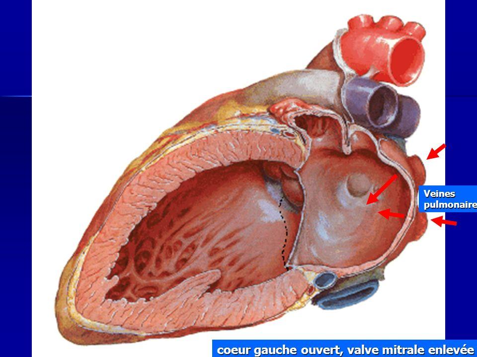 coeur gauche ouvert, valve mitrale enlevée