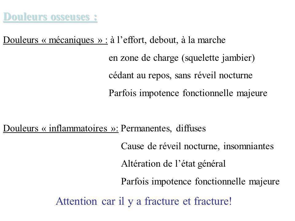 Attention car il y a fracture et fracture!