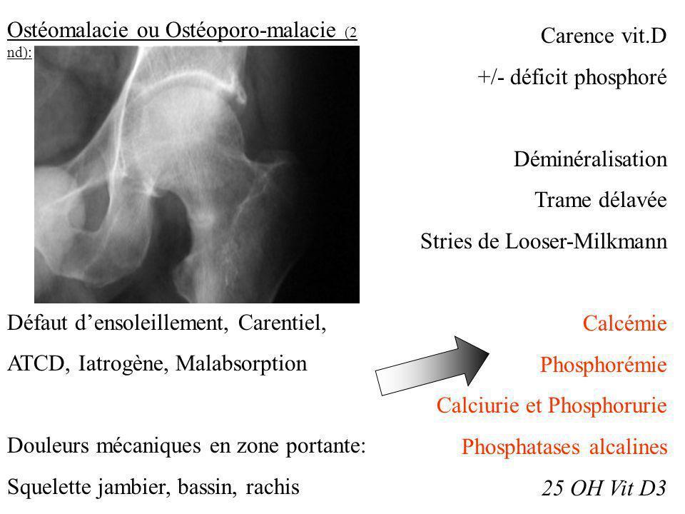 Ostéomalacie ou Ostéoporo-malacie (2 nd):