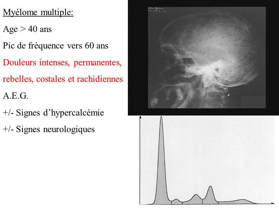 Myélome multiple: Age > 40 ans. Pic de fréquence vers 60 ans. Douleurs intenses, permanentes, rebelles, costales et rachidiennes.