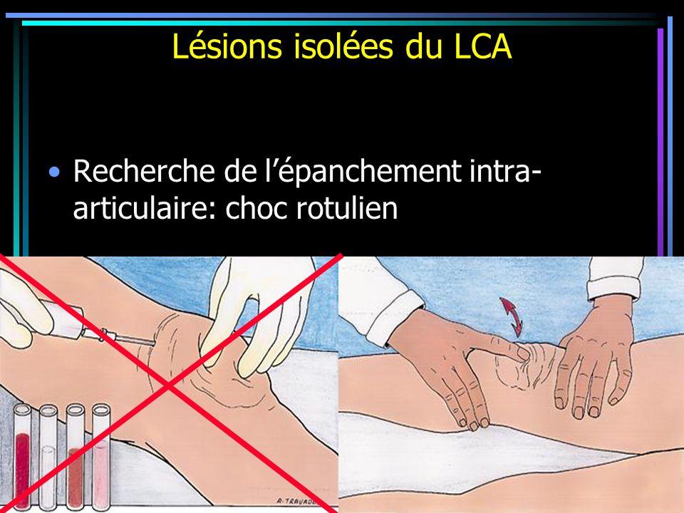 Lésions isolées du LCA Recherche de l'épanchement intra-articulaire: choc rotulien