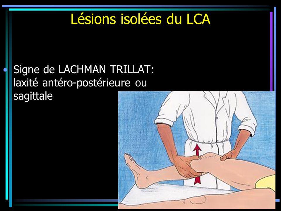 Lésions isolées du LCA Signe de LACHMAN TRILLAT: laxité antéro-postérieure ou sagittale