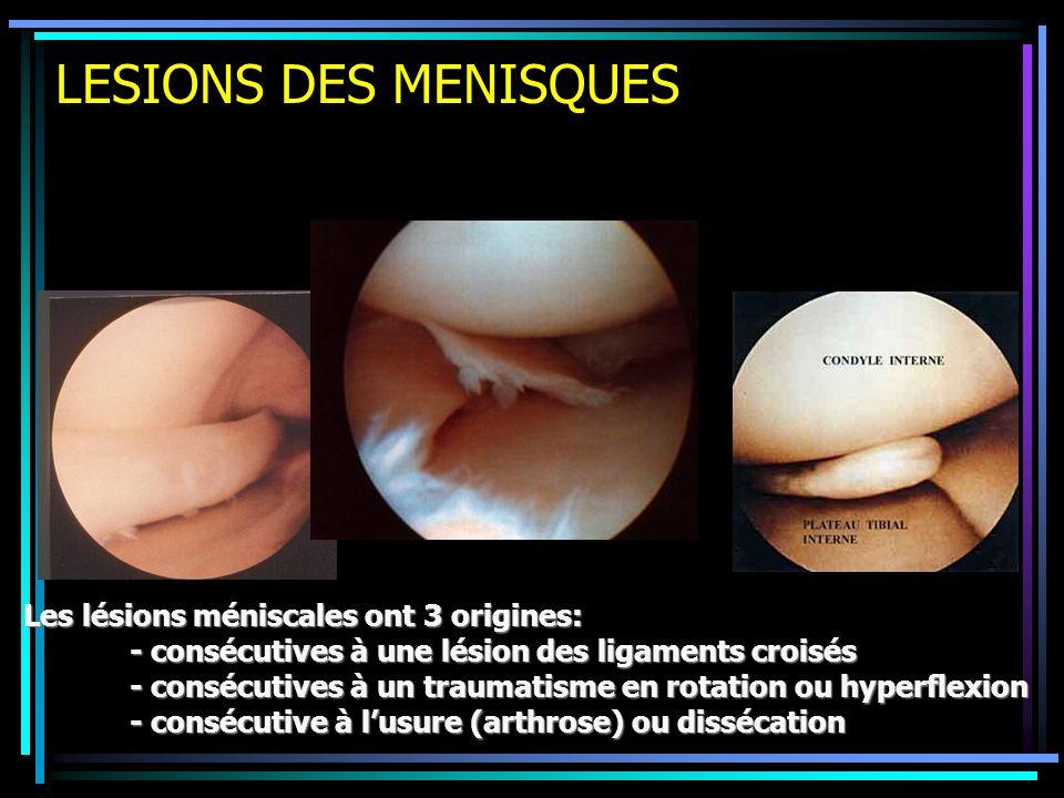 LESIONS DES MENISQUES Les lésions méniscales ont 3 origines: