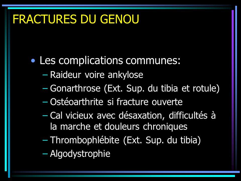 FRACTURES DU GENOU Les complications communes: Raideur voire ankylose