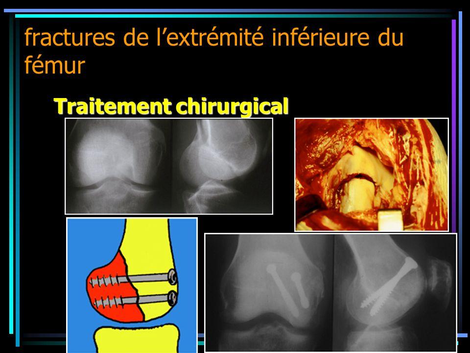 fractures de l'extrémité inférieure du fémur