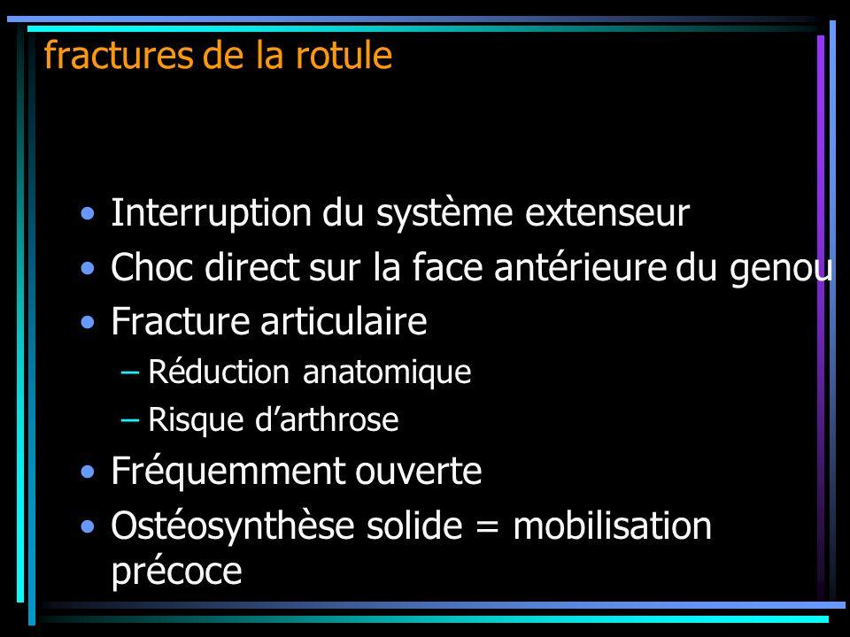 Interruption du système extenseur