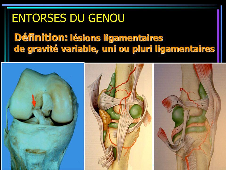 ENTORSES DU GENOU Définition: lésions ligamentaires