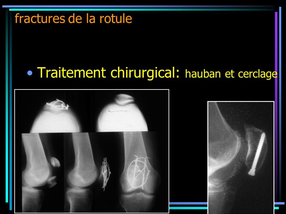 Traitement chirurgical: hauban et cerclage