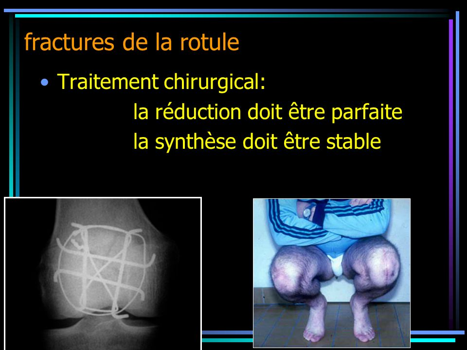 fractures de la rotule Traitement chirurgical:
