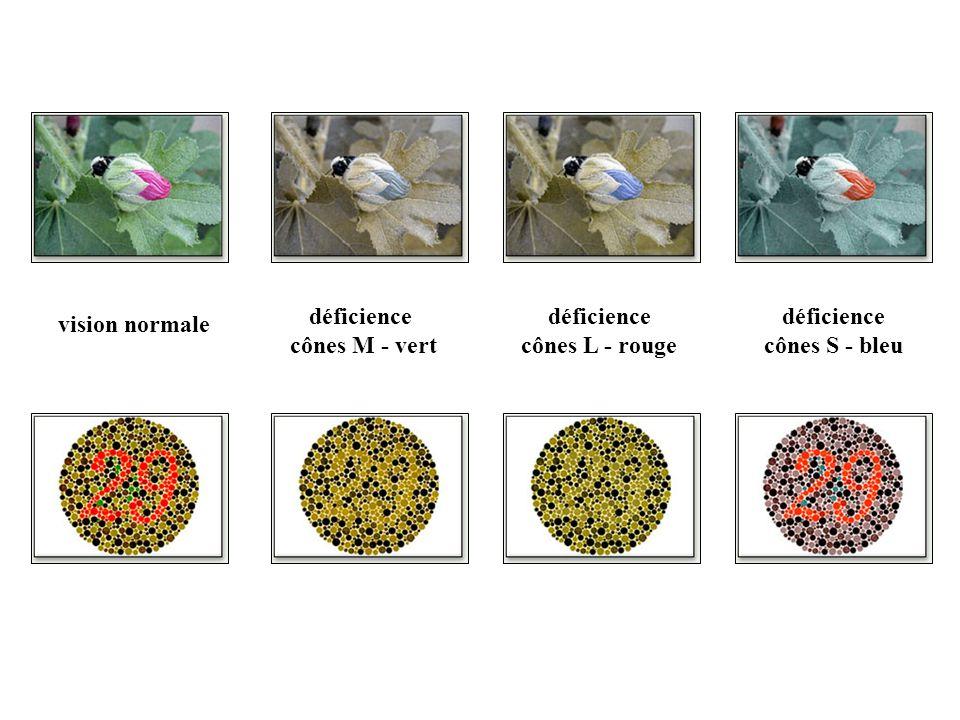 déficience cônes M - vert déficience cônes L - rouge déficience cônes S - bleu vision normale