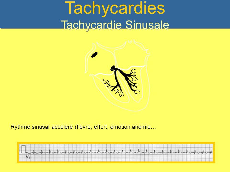 Tachycardies Tachycardie Sinusale
