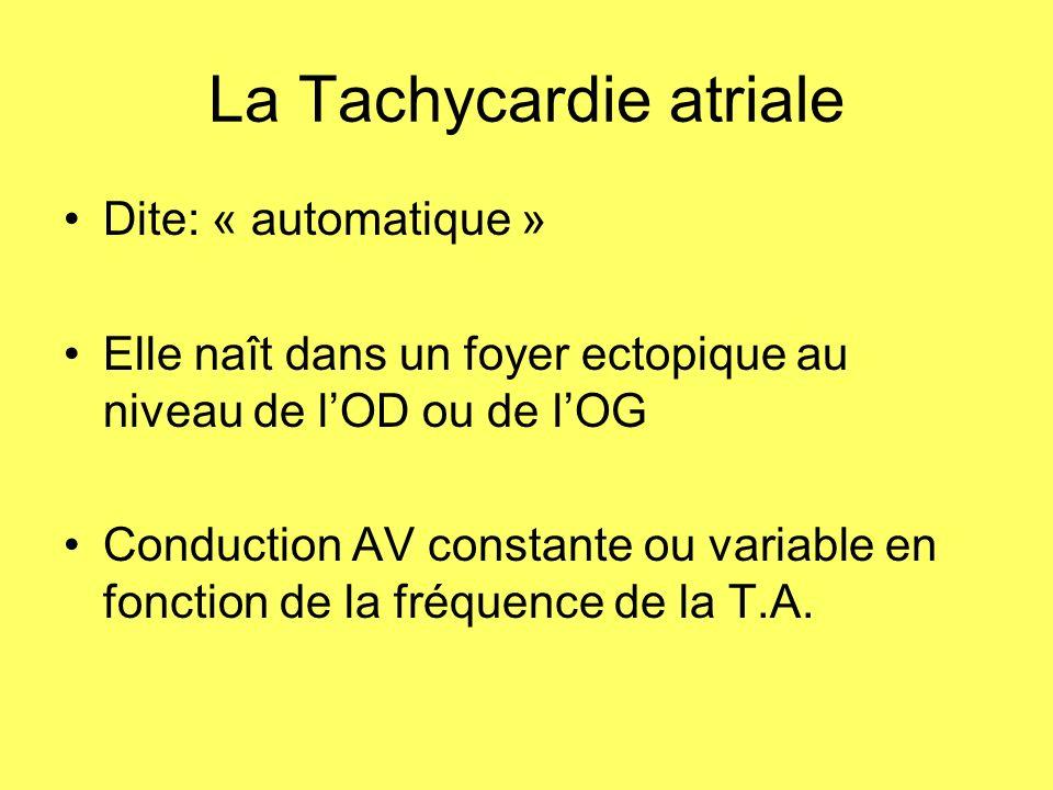 La Tachycardie atriale