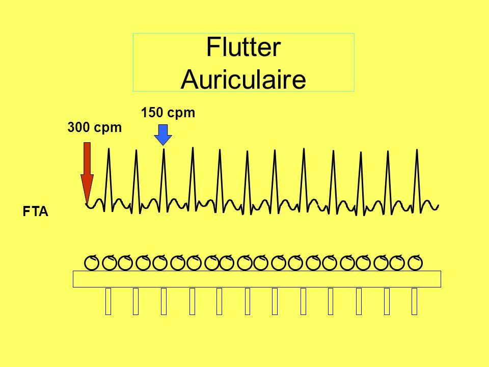 Flutter Auriculaire 150 cpm 300 cpm FTA <