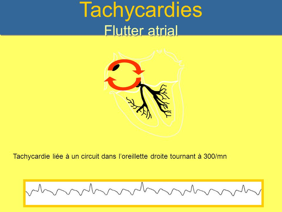 Tachycardies Flutter atrial