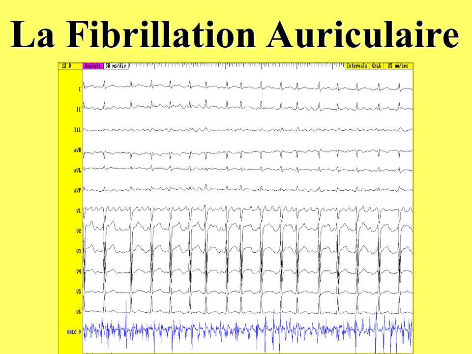 La Fibrillation Auriculaire