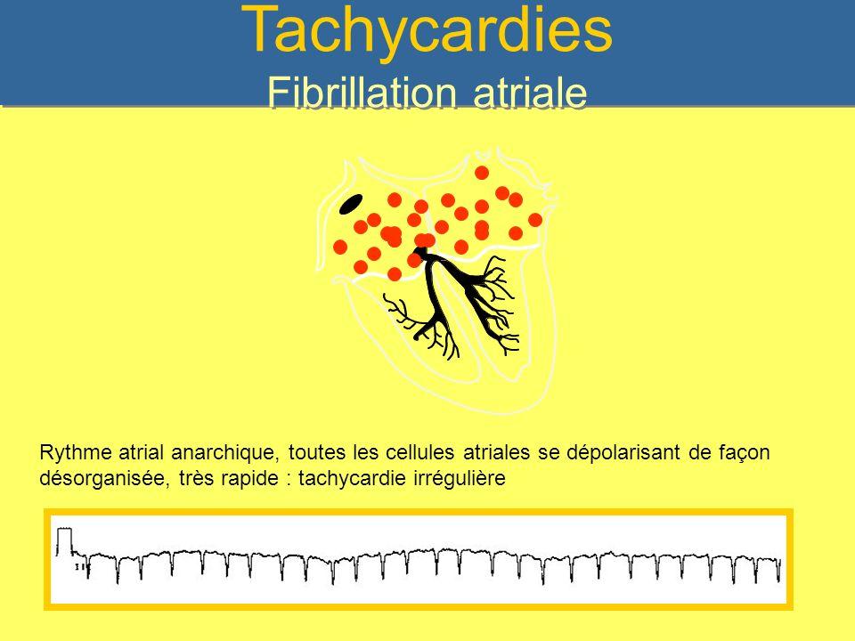 Tachycardies Fibrillation atriale