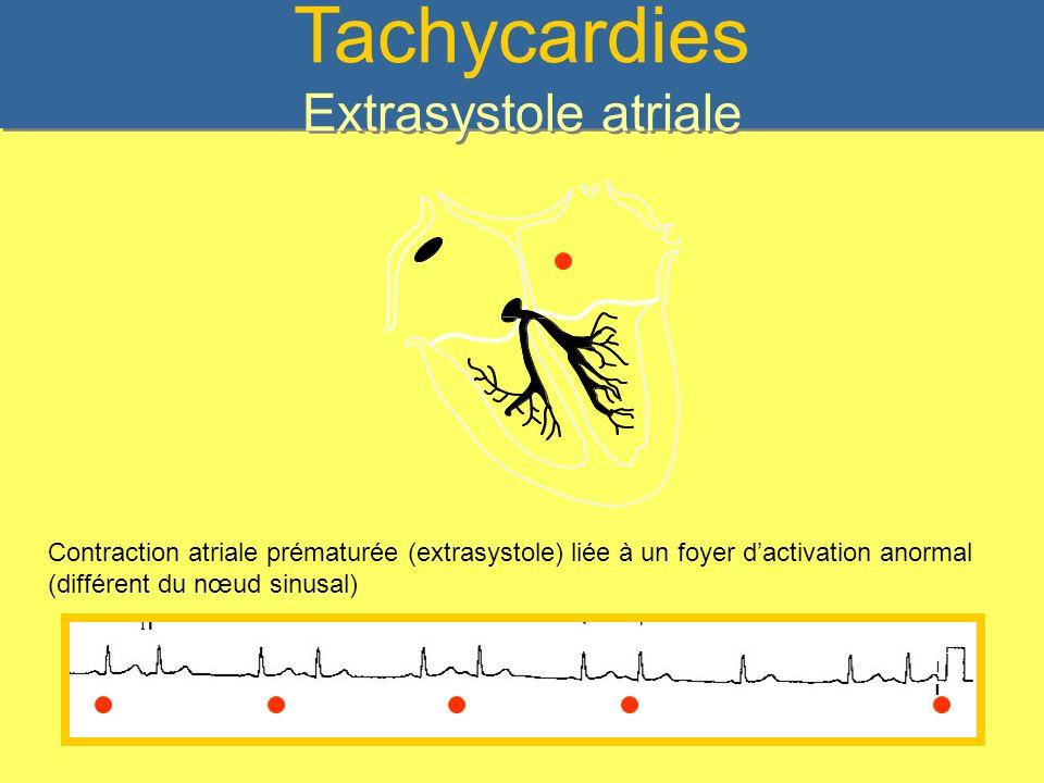 Tachycardies Extrasystole atriale