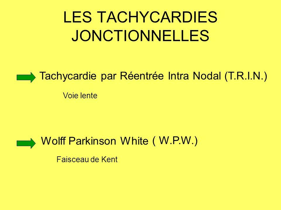 LES TACHYCARDIES JONCTIONNELLES