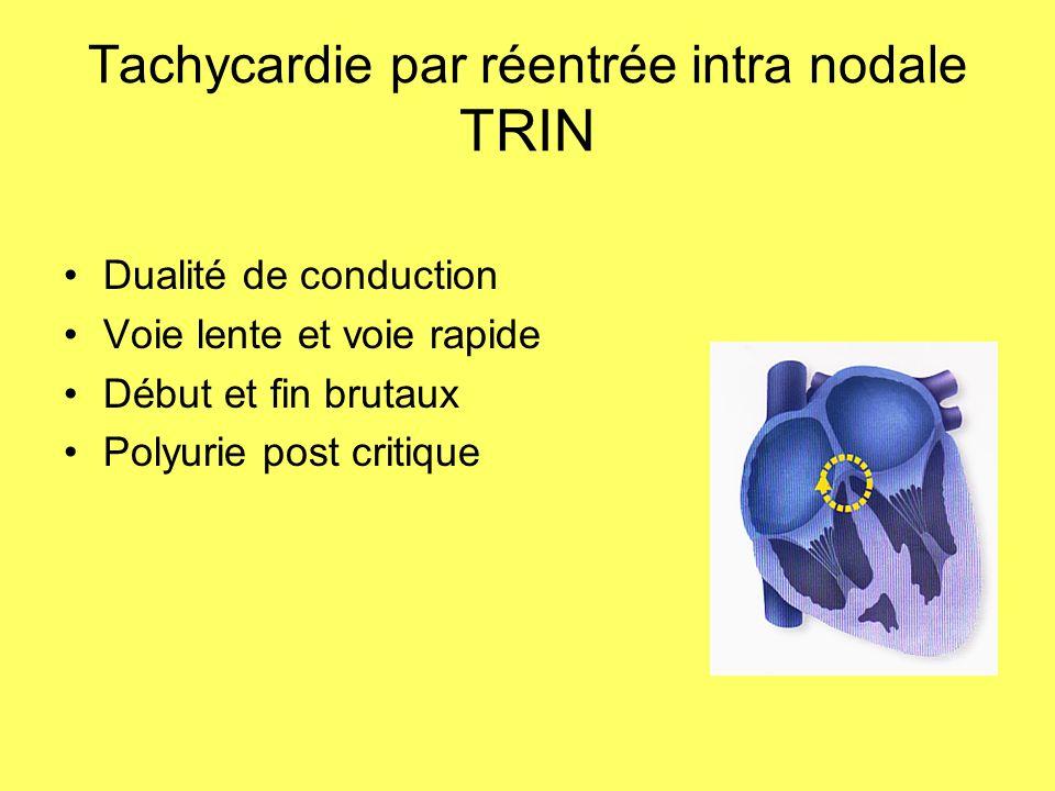 Tachycardie par réentrée intra nodale TRIN