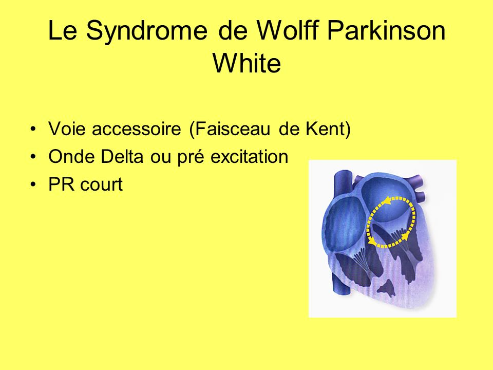 Le Syndrome de Wolff Parkinson White