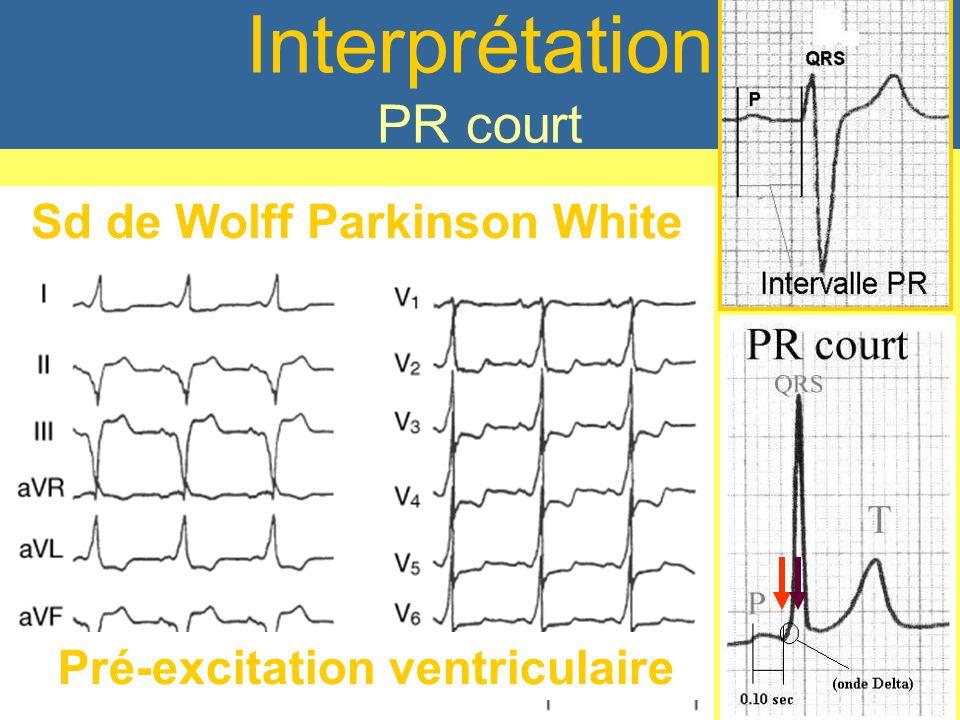Sd de Wolff Parkinson White Pré-excitation ventriculaire